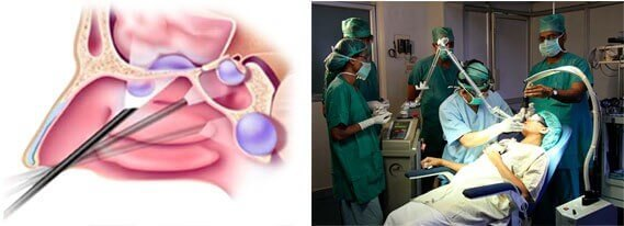 Киста в носу (носовой пазухе): как развивается, симптомы, чем опасна, лечение