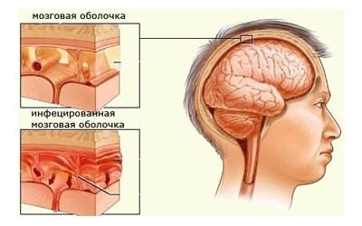 haemophilus influenzae (гемофилюс инфлюэнца): что это, патогенность, лечение
