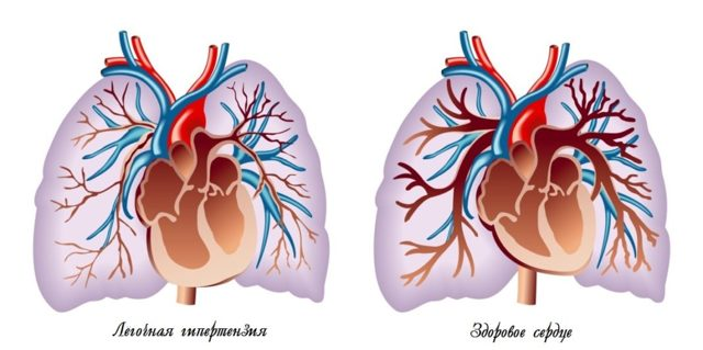 Легочная гипертензия: развитие, клиника и степени, лечение, прогноз