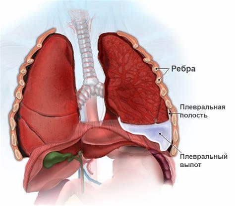 Заболевания дыхательных путей и легких, осложнения