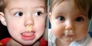 Густые сопли: о чем говорят, врачебный разбор причин у детей и взрослых, как лечить