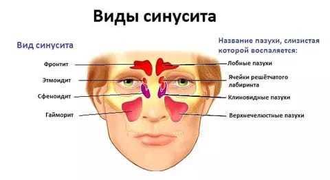 Синусит: формы и подвиды, симптомы, диагностика, тактика лечения