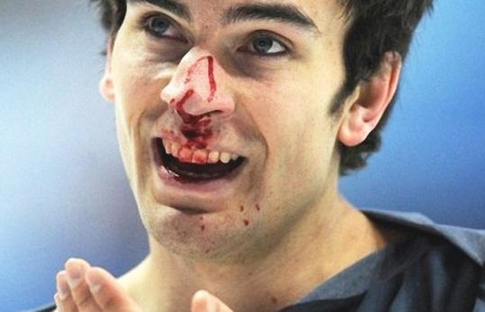 Перелом носа: формы, признаки и выявление, лечение травмы, возможные осложнения