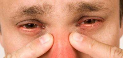 Этмоидит: развитие, симптомы и течение, диагностика, тактика лечения у взрослых и детей