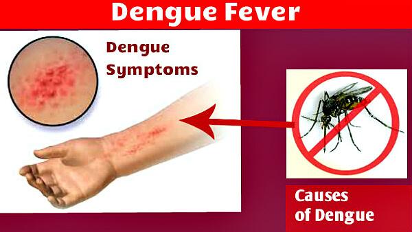 Лихорадка Денге: что это, заражение, симптомы, лечение, прогноз