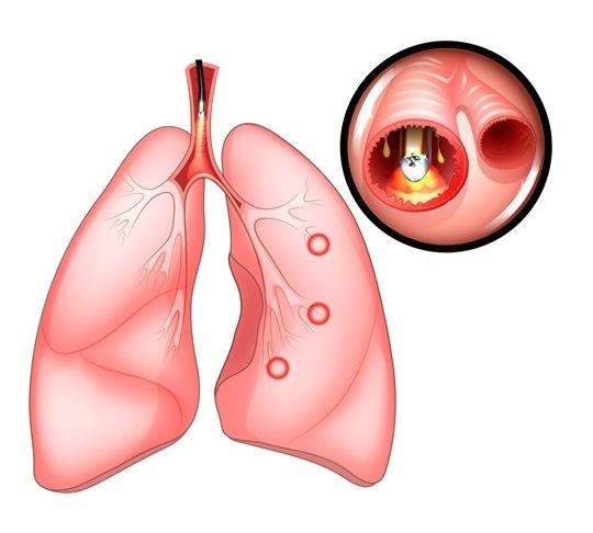 Хрипы в горле: как и почему появляются, течение и проявления, диагностика, принципы лечения