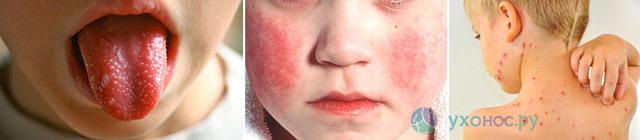Боль в горле: причины и развитие, формы и симптомы, лечение