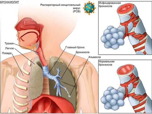 Бронхиолит: развитие, симптомы, диагностика, лечение