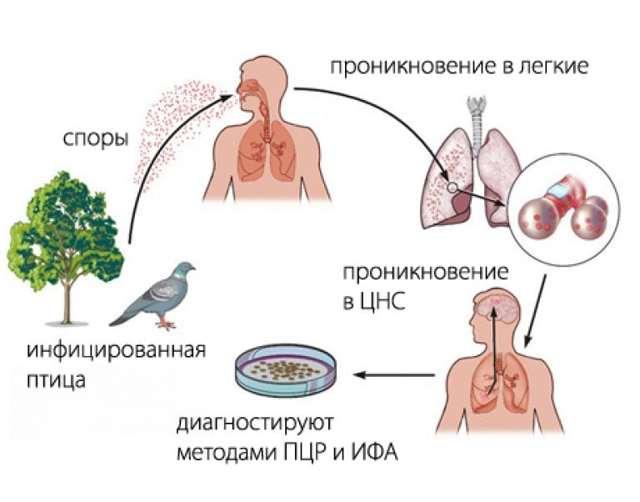 Орнитоз у человека: причины, симптомы, диагностика, лечение
