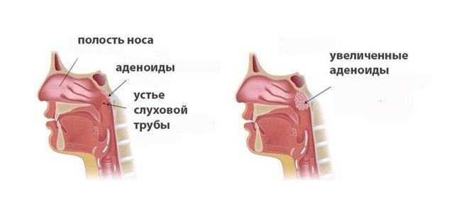 Аденоиды: развитие и степени, проявления, тактика лечения, чем грозят