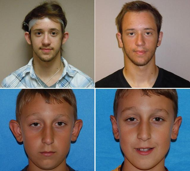 Лопоухость, торчат оттопыренные уши: причины, методы лечения - консервативные и хирургические