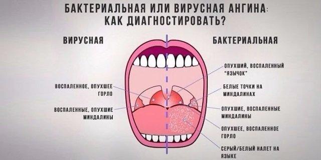 Бактериальная инфекция: бактериолог о формах, отличиях от вирусной, симптоматике, диагностике и лечении