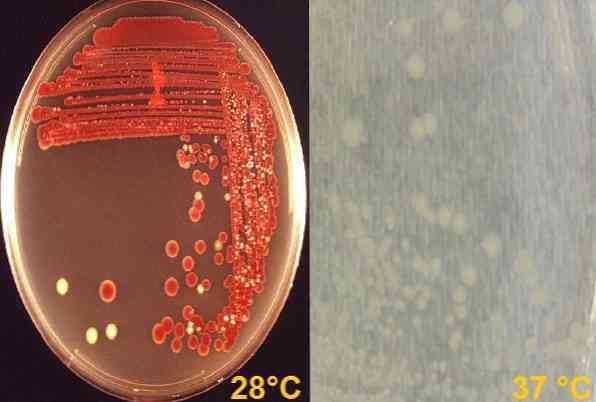 serratia, серрация (marcescens, spp): характеристика, лечение