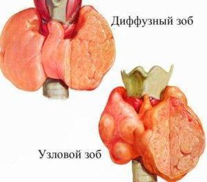 Иммунолог о боли в горле при глотании: от самодиагностики к самопомощи