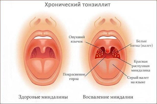 Симптомы и проявления болезней горла, дыхательных путей и легких