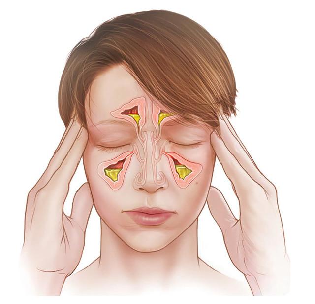 Текут сопли: почему возникает явление, причины - патологические и физиологические, проявления, лечение