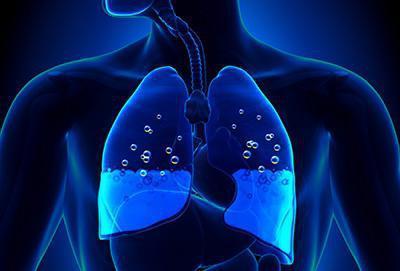 Отек легких: причины развития, симптомы, диагностика, помощь и лечение