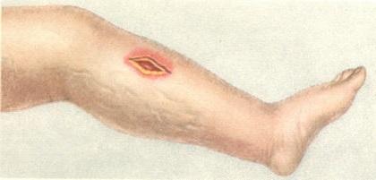 Анаэробная инфекция: возбудители, формы, диагностика, лечение