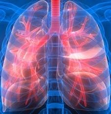 Саркоидоз легких – лечение болезни на разных стадиях