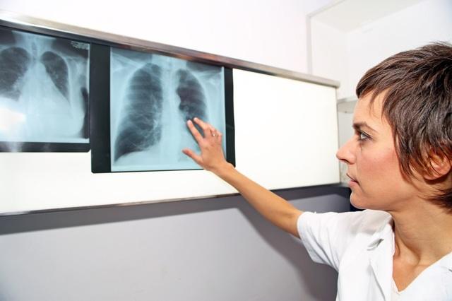 Сердечный кашель - что это и как лечить физкультурой и диетами