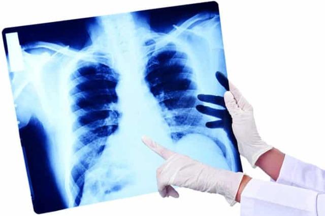 Ингаляции при пневмонии, эфективно ли применение небулайзера