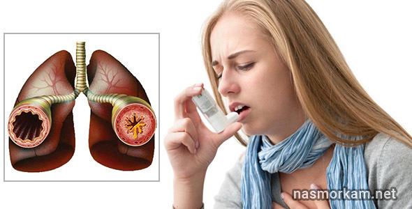 Щекочет в горле и вызывает кашель – причины и симптомы