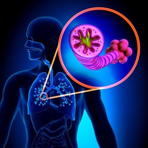 Воспаление легких – причины, симптомы, лечение пневмонии