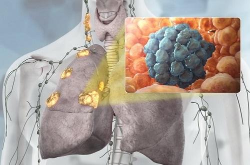 Хрипы в грудине и кашель - методы лечения, показания, противопоказания