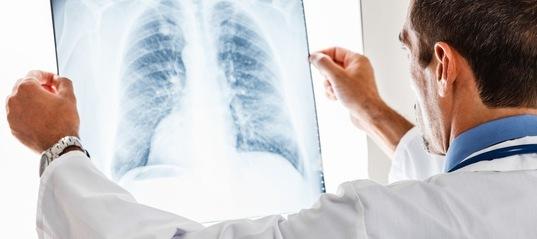 Астматический кашель: причины, симптомы и лечение