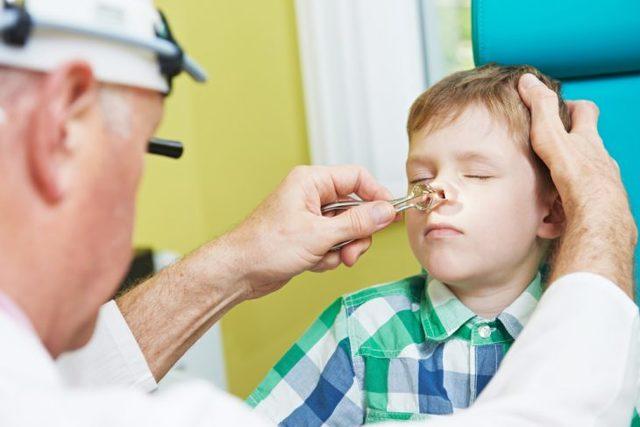 Симптомы и лечение ринофарингита, аптечные и народные средства