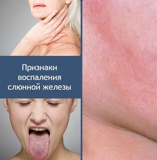 Что делать с сухостью в горле, вызывающей кашель?