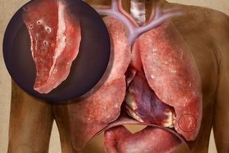 Почему болят ребра при кашле – основные причины