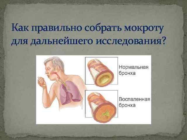 Эозинофилы в мокроте: микроскопия, подготовка, результаты