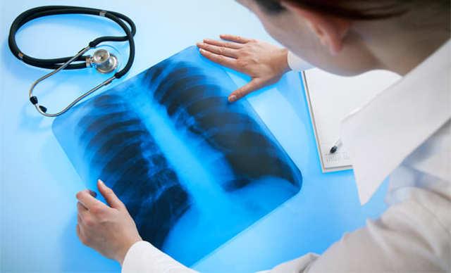 Фтизиатр: чем занимается врач, специализация, диагностика, лечение