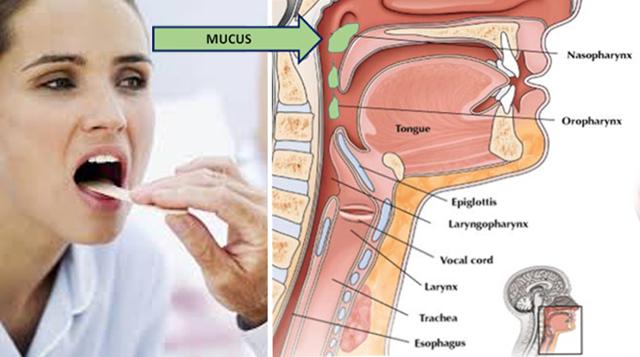 Как избавиться от мокроты в горле и каковы симптомы, лечение в домашних условиях, причины состояния
