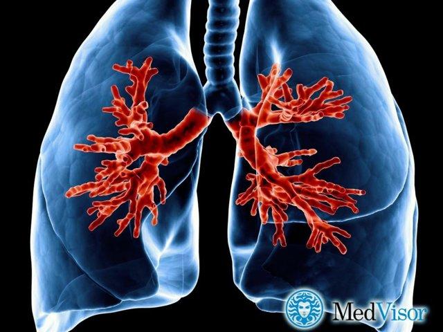 Как отличить бронхит от пневмонии - практические рекоммендации