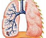 Симптомы пневмонии у детей: причины и лечение