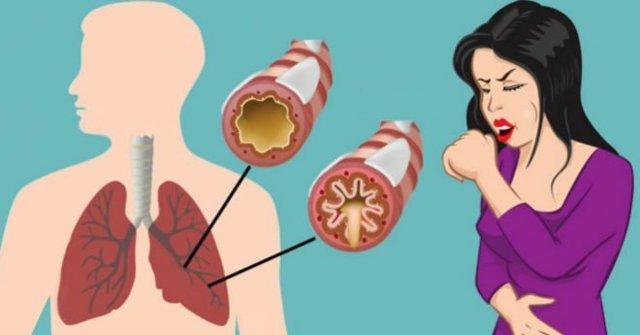 Кашель при грудном вскармливании: как предотвратить, чем лечить