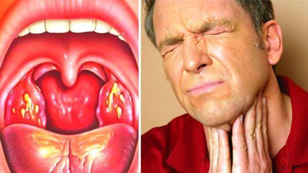 Ангина у взрослых: симптомы, лечение, медикаменты, полоскания