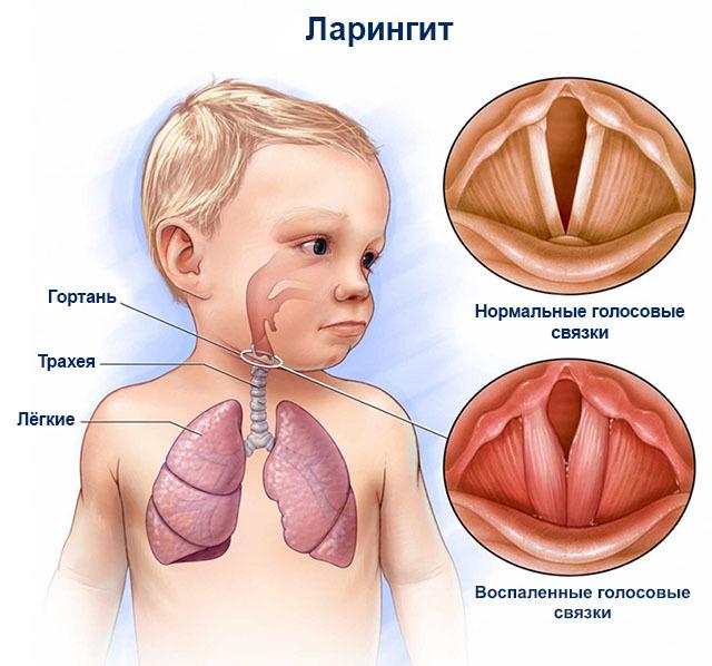 Ларингит у детей – симптомы и лечение заболевания